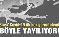 Covid-19 ilk kez böyle görüldü: Hücrelere böyle bulaşıyormuş